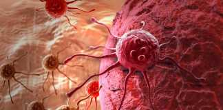 Female and male breast cancer symptoms