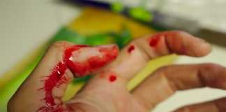cut your hand, use these natural methods to treat it - hand accident