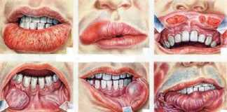 spot oral cancer