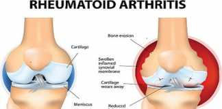 Arthritis and joint pain relieving