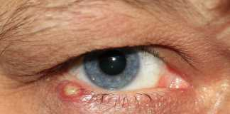 DIY remedies to get rid of barley eye and chalazion