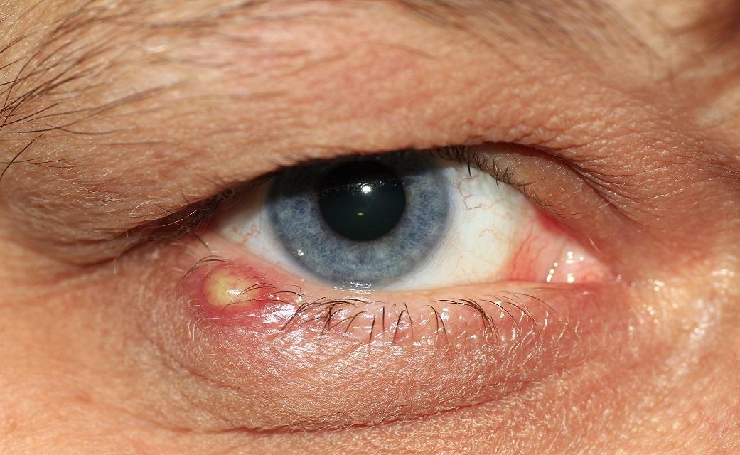 DIY remedies to get rid of barley eye and chalazion