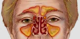 Infected sinus cavity