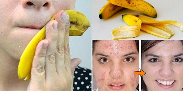 Never throw banana peels again, use them wisely