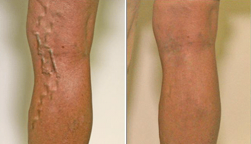 how to treat and prevent varicose veins