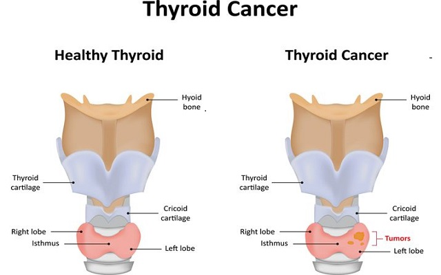 All You Need To Know To Manage Papillary Thyroid Cancer