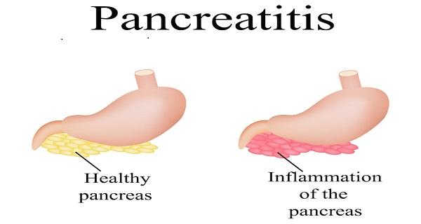 Pancreatitis and pancreatic cancer symptoms
