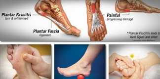 Plantar fasciitis and toe pain