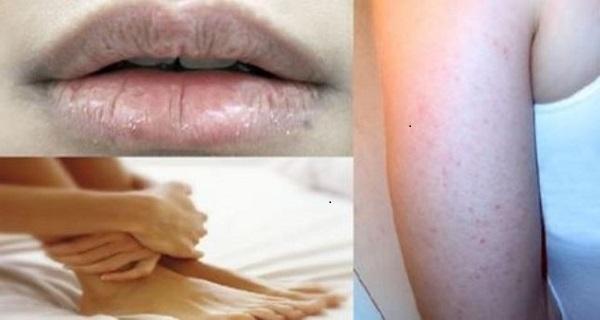 Vitamin Deficiency Rash Hair Loss And Dry Skin Symptoms