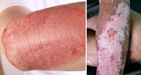 Allergies and autoimmune