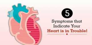 Cardiovascular disease and stroke