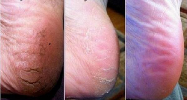 Really dry feet