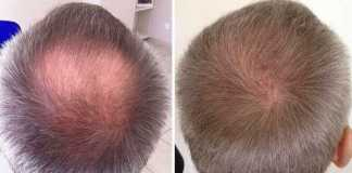 prevent male pattern baldness