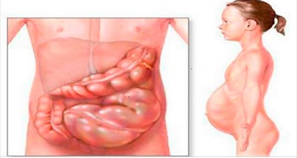 Cure Gastroparesis And Gastritis In A Natural Way Using ...