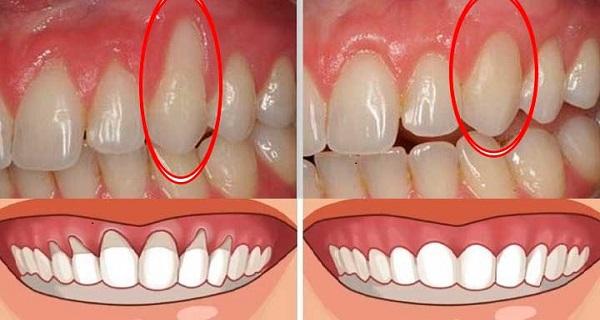 Gums receding on bottom front teeth