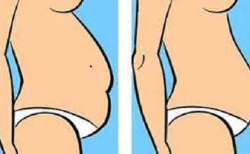 different types of belly fat
