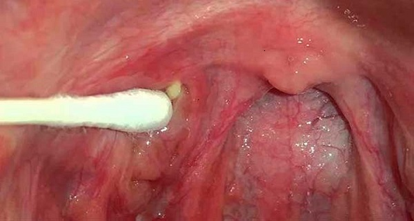 Cleaning your tonsils