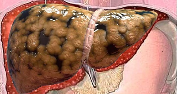 diagnosis of fatty liver
