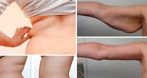 how to get rid of flabby arms after weight loss