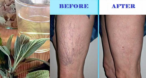 Reduce Large Varicose Veins In Legs Naturally Using This ...
