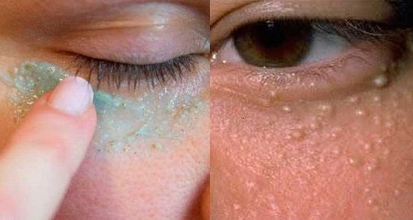 Make White Pimples Around Eyes Milia Disappear Using This