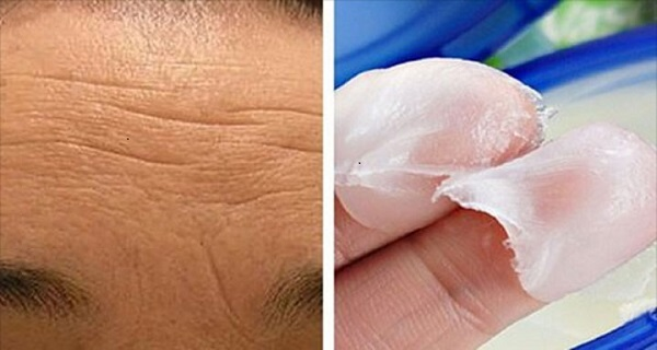 How To Get Perfectly Clear Skin Naturally