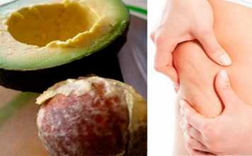 how to burn cellulite