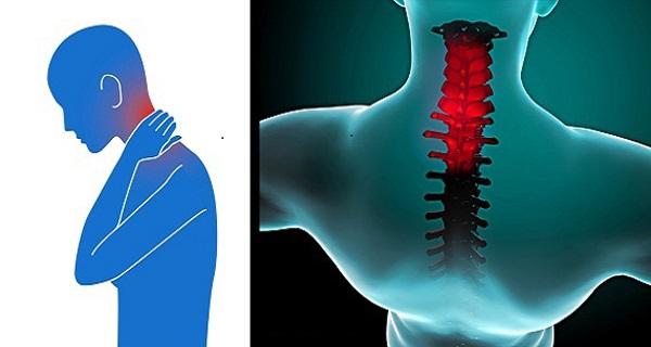 constant sore neck