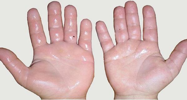 how to stop having sweaty palms