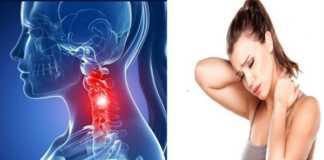 cervical spondylosis natural treatment