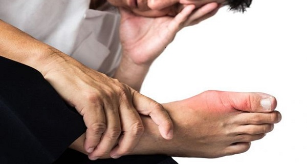 joint pain due to uric acid
