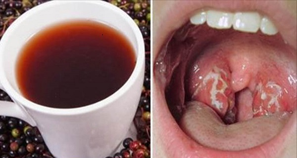 pharyngitis contagious