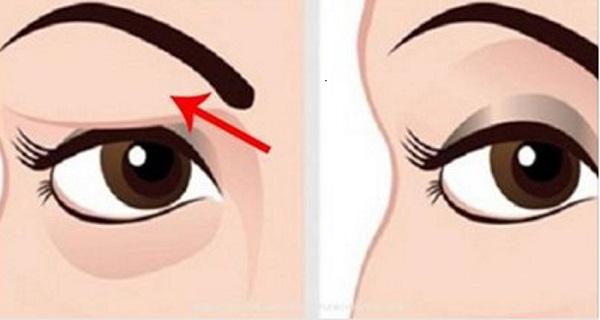 skin above eyelid drooping