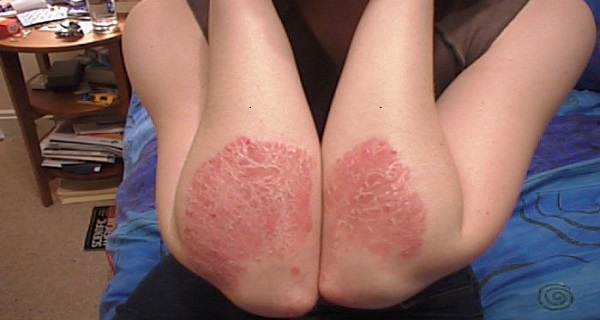 how to clear up psoriasis