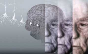 what gene causes Alzheimer's disease