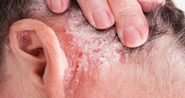 what is psoriasis skin disease