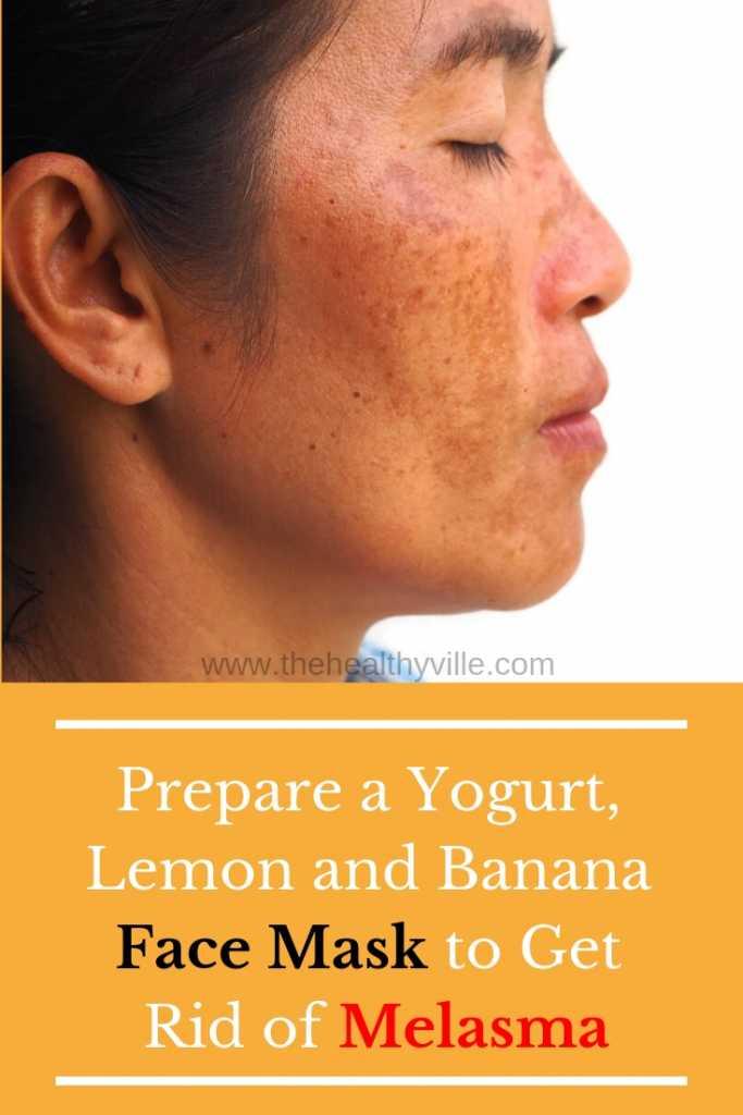 Prepare a Yogurt, Lemon and Banana Face Mask to Get Rid of Melasma