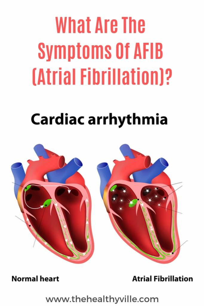 What Are The Symptoms Of AFIB (Atrial Fibrillation)