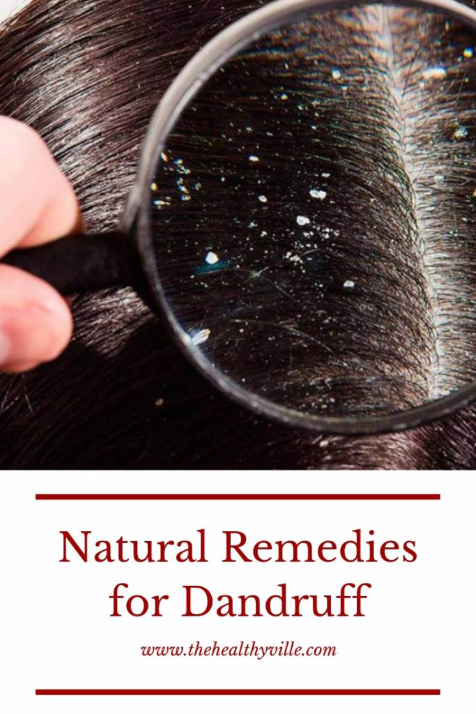 Natural Remedies for Dandruff to Get Rid of It Permanently