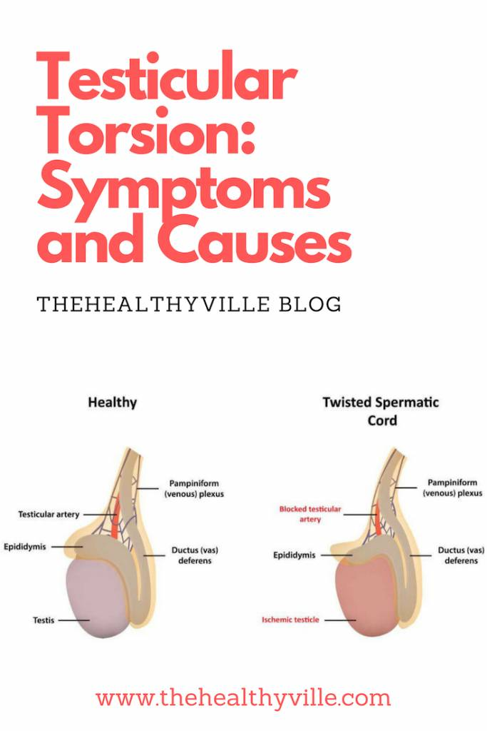 Testicular Torsion Symptoms and Causes