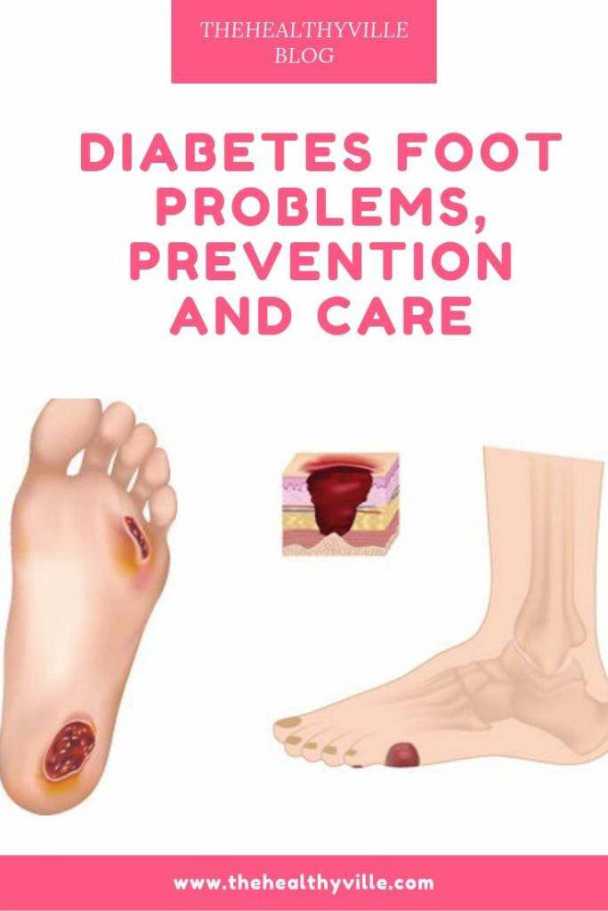 Diabetes Foot Problems, Prevention and Care