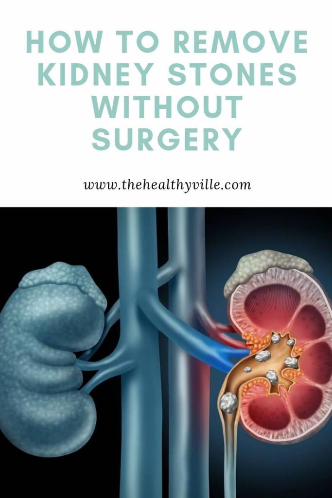 Removing Kidney Stones Without a Surgery – How to Do It_