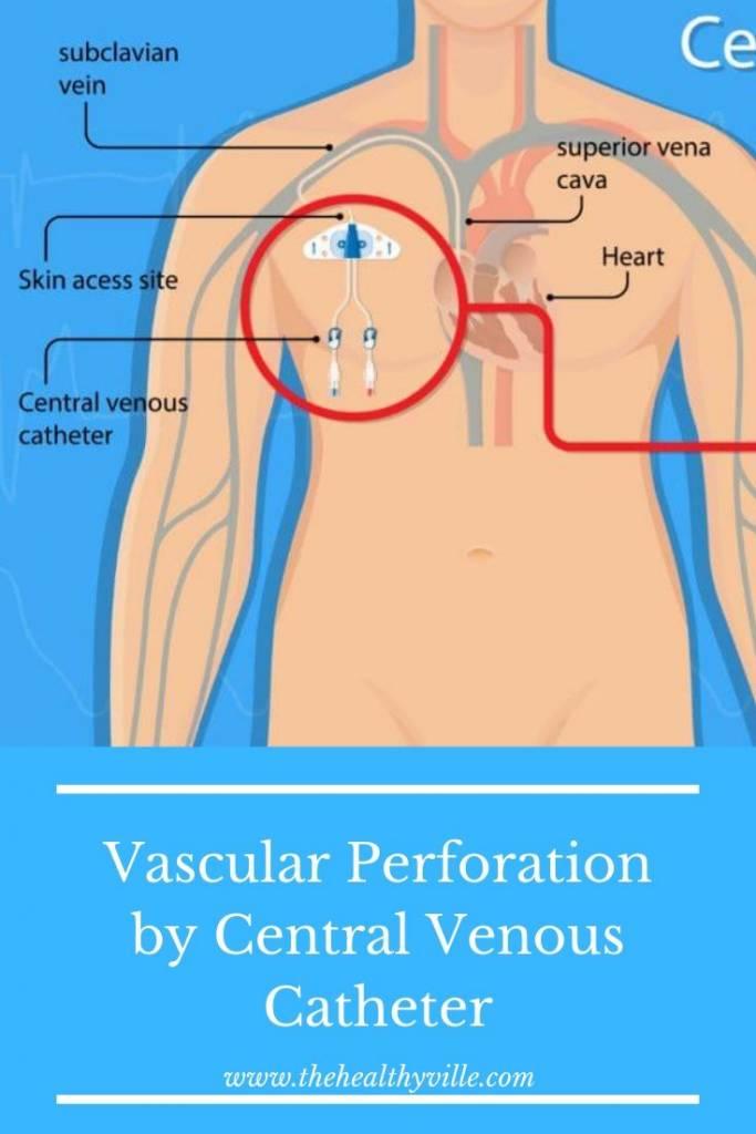 Vascular Perforation by Central Venous Catheter