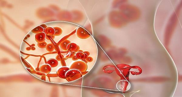 Mycoplasma Genitalium Treatment Causes And Symptoms