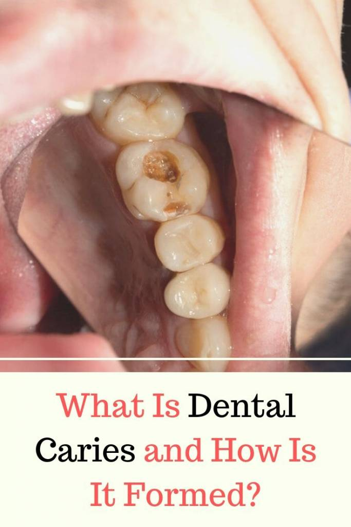 What Is Dental Caries and How Is It Formed_