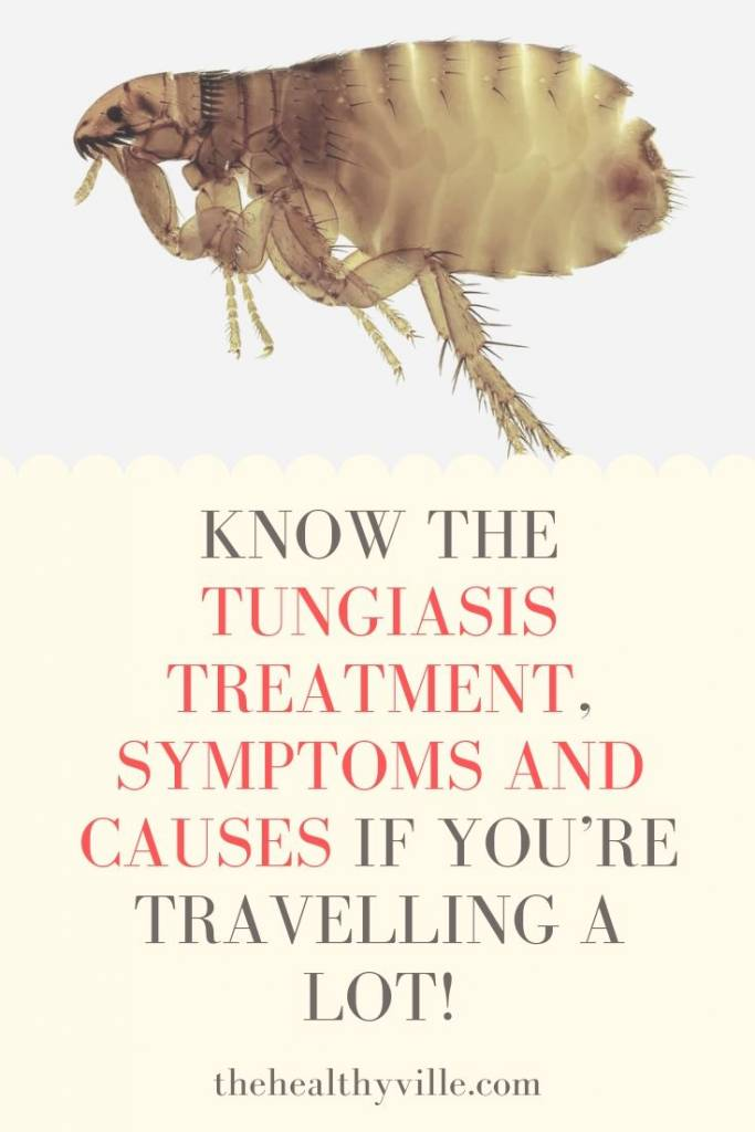 Know the Tungiasis Treatment, Symptoms and Causes If You're Travelling a Lot!