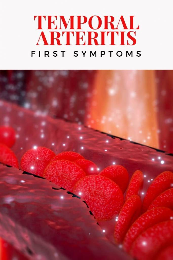 The First Symptoms of Temporal Arteritis