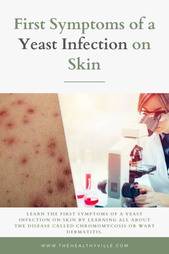 First Symptoms of a Yeast Infection on Skin