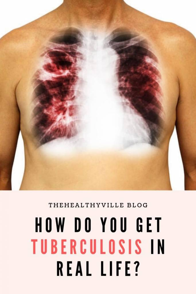 How Do You Get Tuberculosis in Real Life_