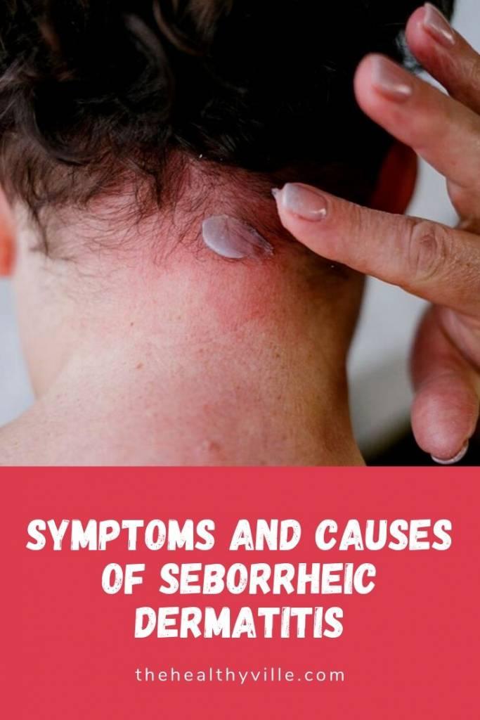 Symptoms and Causes of Seborrheic Dermatitis